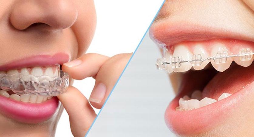 Invisalign over metal braces