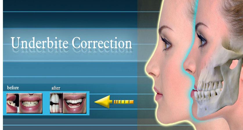 can braces fix an underbite