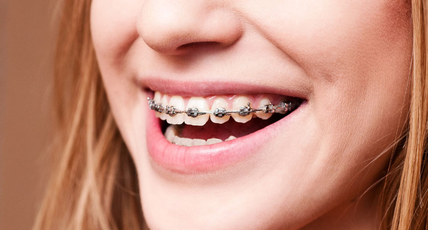 orthodontic options north Miami
