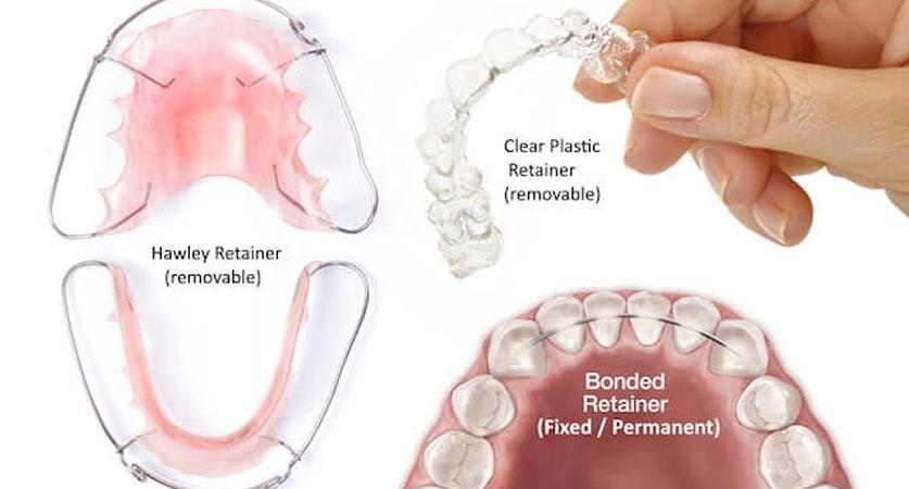 permanent retainer