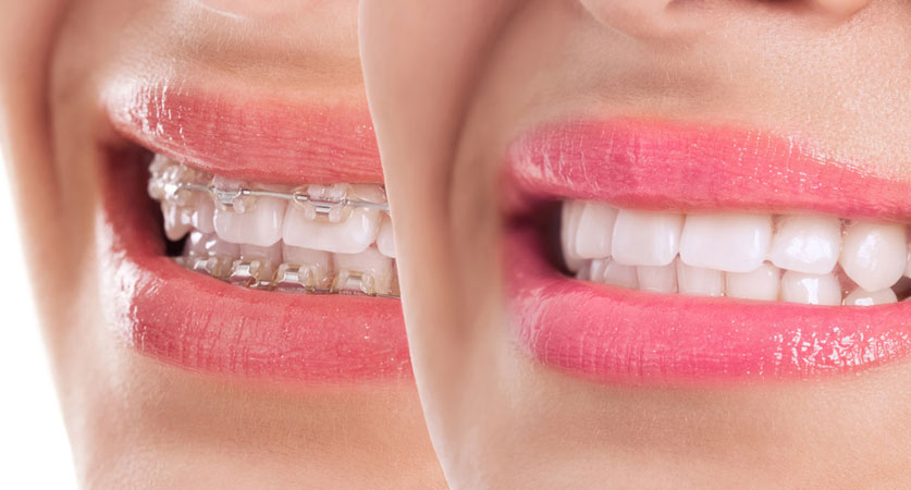 Dental orthodontics