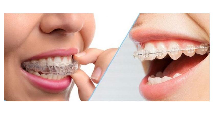best local orthodontist